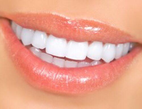 Whiten Your Teeth & Brighten Your Year